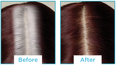 Color Recover by Kampalook Before & After Red