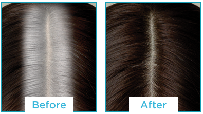 Color Recover by Kampalook Before & After Dark Brown