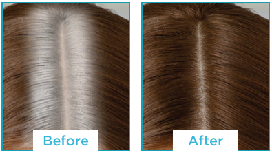 Color Recover by Kampalook Before & After Light Brown
